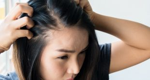 Get Rid of Your Hair Loss Anxiety